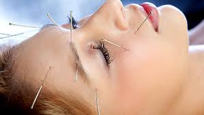 traitement de la sinusite par l acupuncture